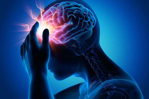 Diagram of Concussion Pain